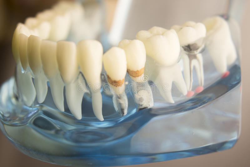 Dental teeth plaque model. Dental tooth dentistry student learning teaching model showing teeth, roots, gums, gum disease, tooth decay and plaque royalty free stock image