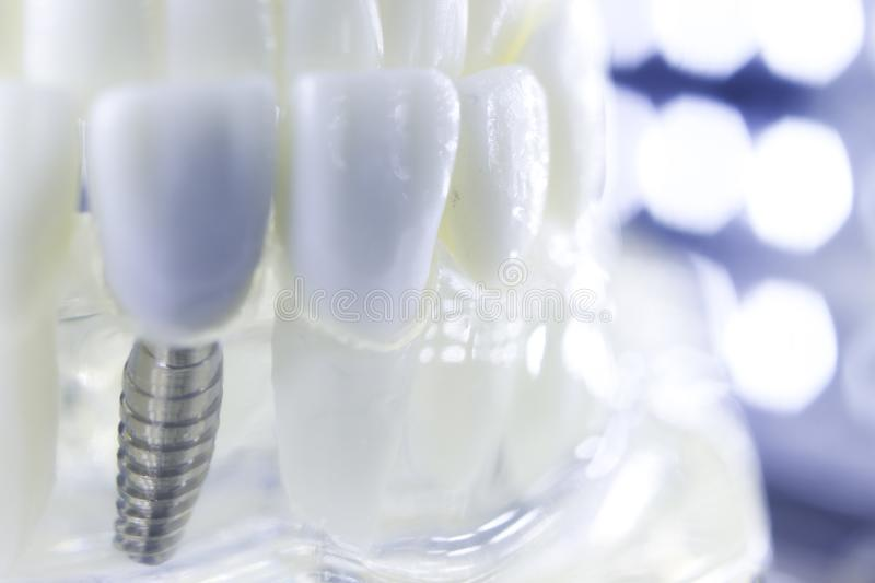 Dental titanium tooth implant royalty free stock images
