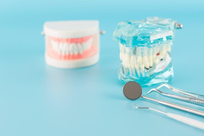 Dental tool and dental disease model in dental concept. Dental tool with dental implant model in dental care concept royalty free stock photos