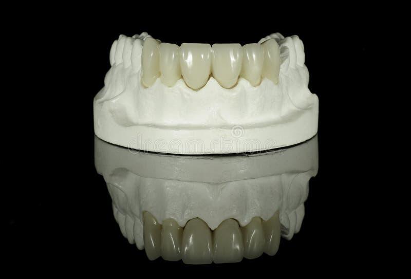 Download Dental Tooth Bridge stock image. Image of dental, bridge - 25250435