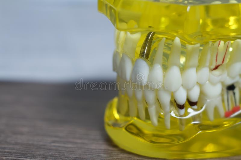 The dental tooth dentistry student learning teaching model showing teeth, roots, gums, gum disease. Tooth decay and plaque royalty free stock photography