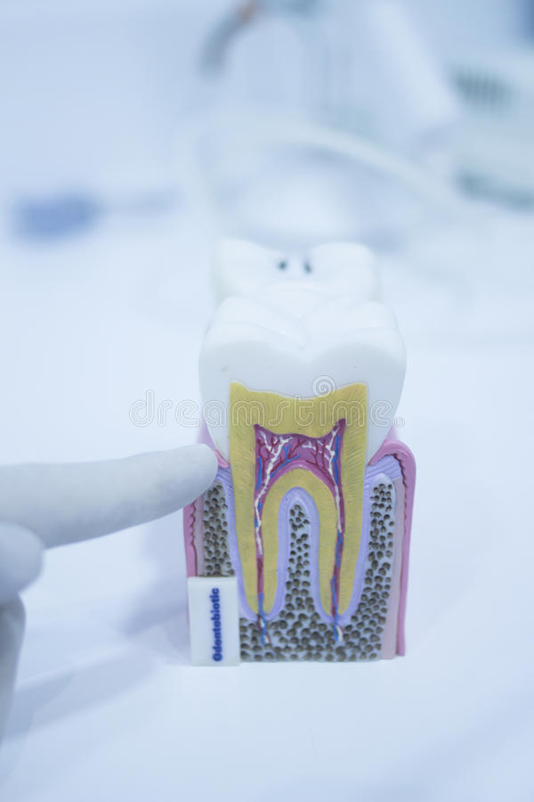 Free Dental Tooth Model Cast Showing Decay Enamel Roots Stock Photos - 63580943