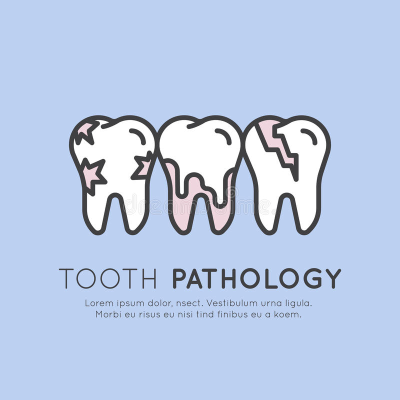 Dental Tooth Pathology and Decay. Vector Style Illustration Logo Badge or Dental Tooth Pathology and Decay, Dental Caries, Tooth Crack and Calculus royalty free illustration