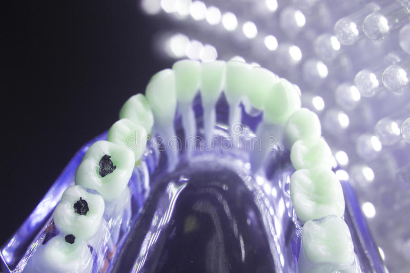 Dental tooth plaque decay. Dentists dental teeth teaching model showing each tooth, gum, root, implant, decay, plaque and enamel stock photography