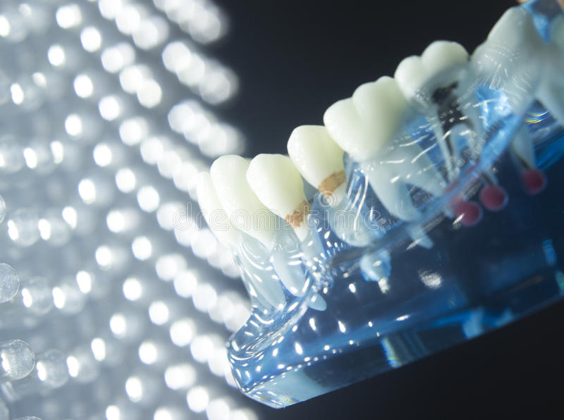 Dental tooth plaque decay. Dentists dental teeth teaching model showing each tooth, gum, root, implant, decay, plaque and enamel royalty free stock photos