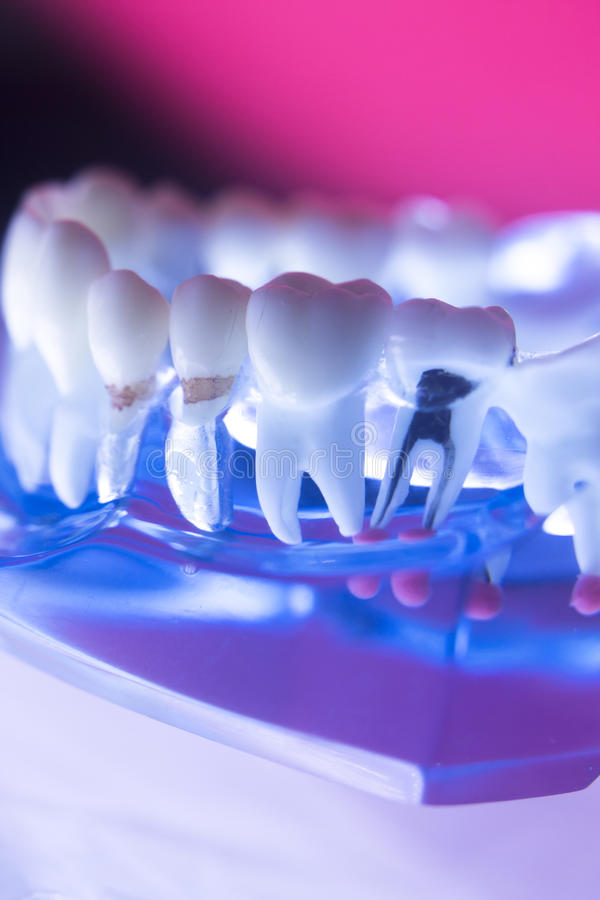 Dental tooth root canal. Dentists& x27; dental teeth model showing tooth enamel, gums, roots canal, plaque, decay, and titanium metal implants stock photo