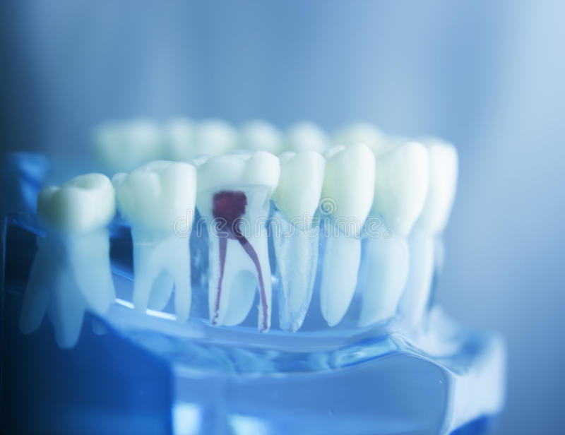Dental tooth root model. Dental tooth dentistry student learning teaching model showing teeth, roots, gums, gum disease, tooth decay and plaque stock image
