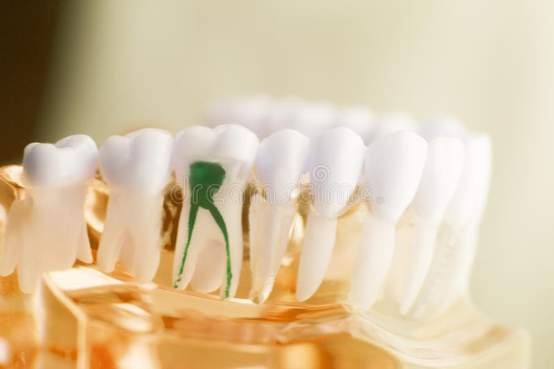 Dental tooth root model. Dental tooth dentistry student learning teaching model showing teeth, roots, gums, gum disease, tooth decay and plaque stock images