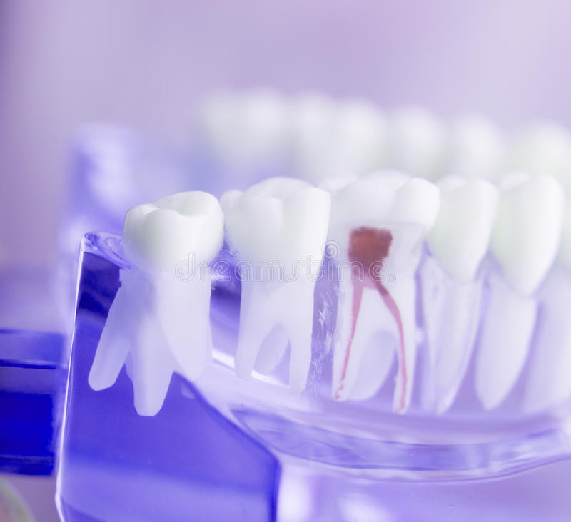 Dental tooth root model. Dental tooth dentistry student learning teaching model showing teeth, roots, gums, gum disease, tooth decay and plaque royalty free stock images