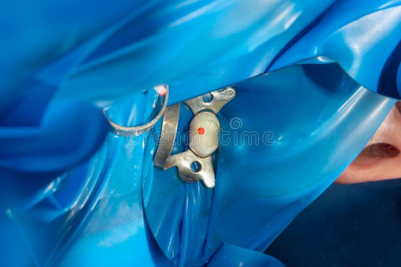 Dental treatment in dental clinic. Rotten carious tooth macro. Treatment endodontic canals royalty free stock photography