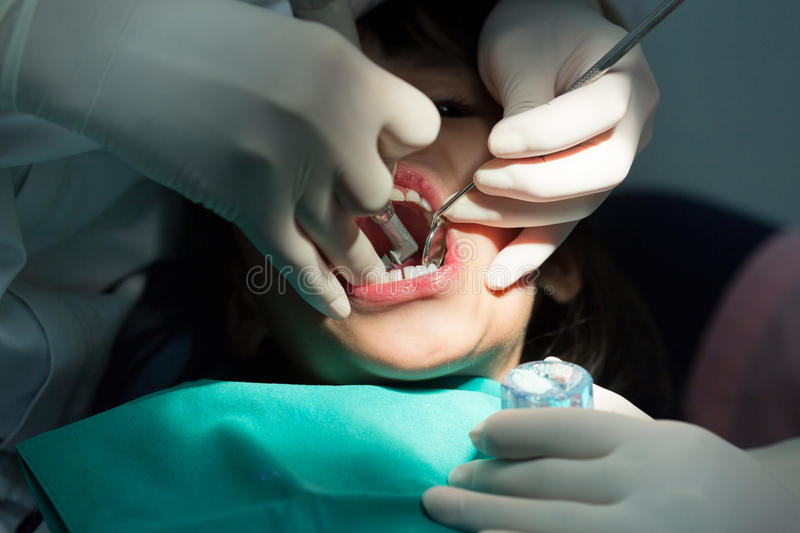 Dental treatment close-up children patient mouth with medical tools.  stock image
