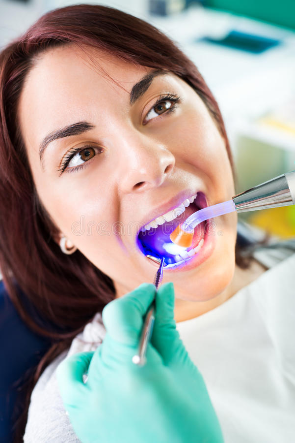 Dental treatment with UV lamp. Dentist with dental curing UV lamp finishing repair tooth on the female patient in the office stock photography