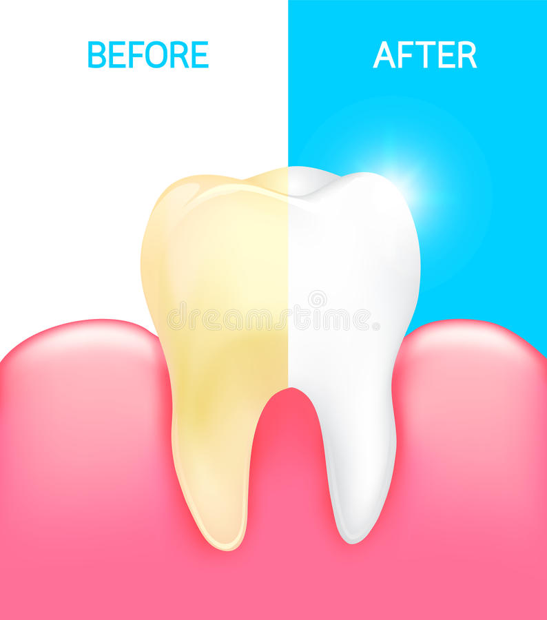 Dental veneer, tooth before and after. stock illustration
