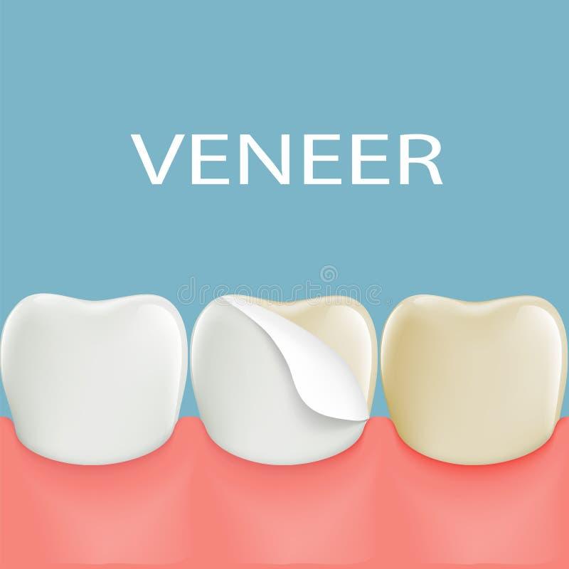 Dental veneers on a human tooth. Stock. Illustration vector illustration