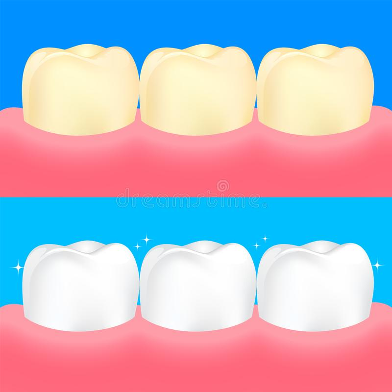 Dental veneers on human tooth. Before and After, whitening oral care concept. vector illustration