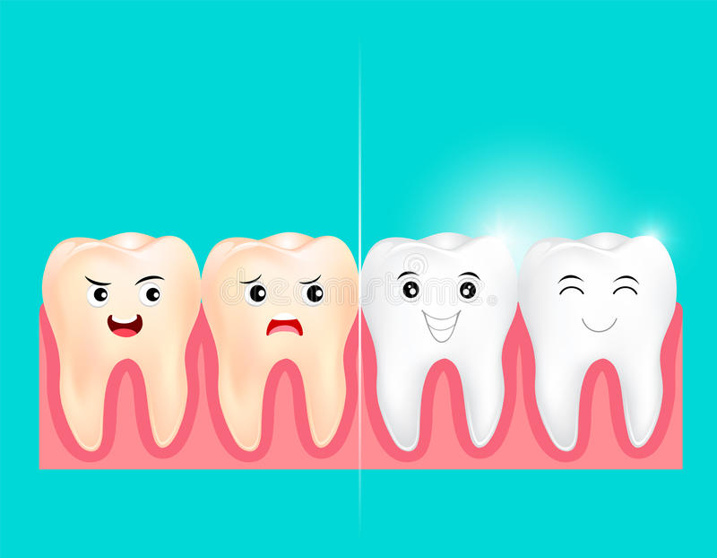 Dental veneers on a human tooth. Before and After. vector illustration