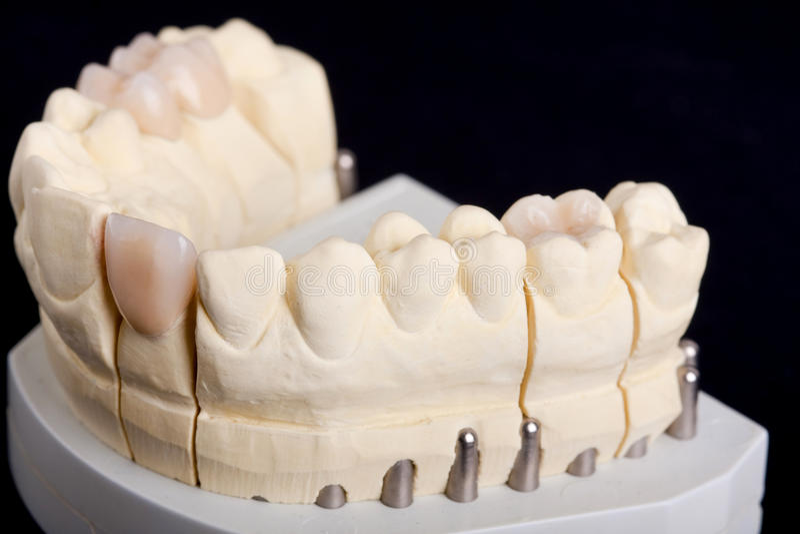 Dental wax model. Ower black background royalty free stock images