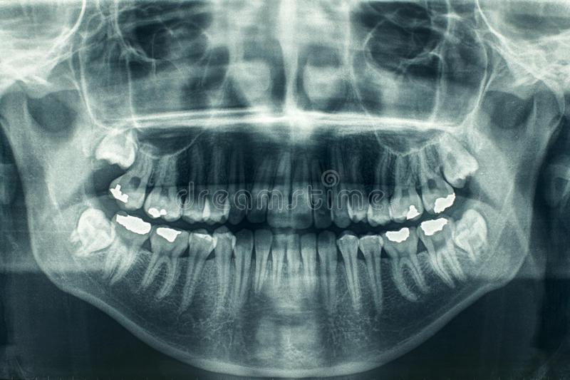 Download Dental xray stock photo. Image of medical, blue, radiation - 22807088