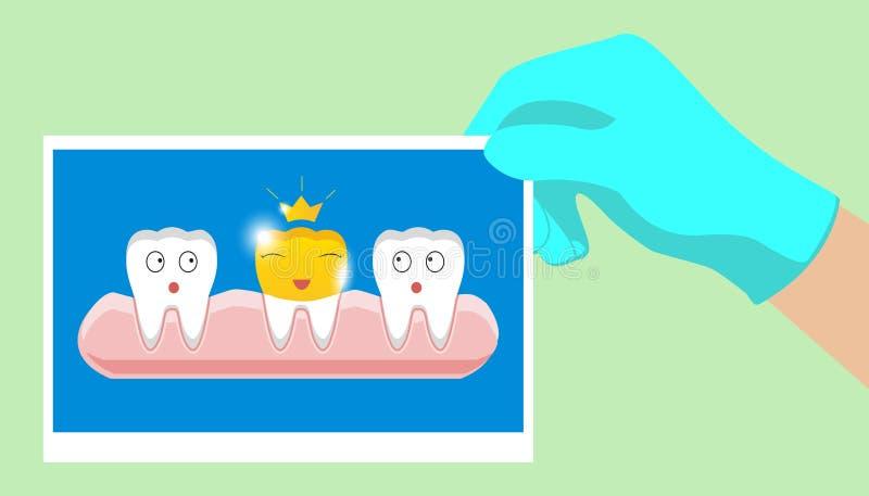 Dente com ícone dental dourado da coroa no estilo dos desenhos animados em um fundo branco ilustração royalty free