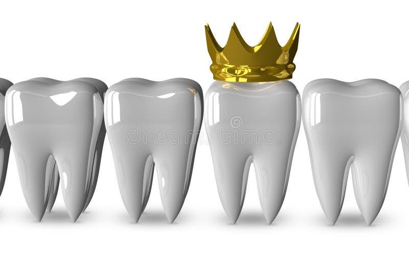 Dente com coroa dourada ilustração do vetor