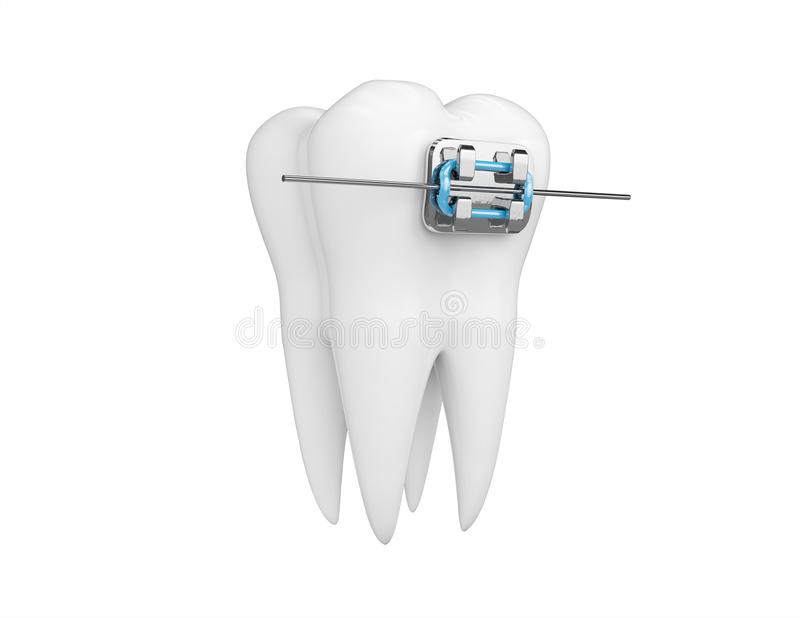 Dente con i ganci isolati su bianco Salute, medico di dente e medico, clinica dentaria o simbolo del dentista 3d rendono illustrazione di stock