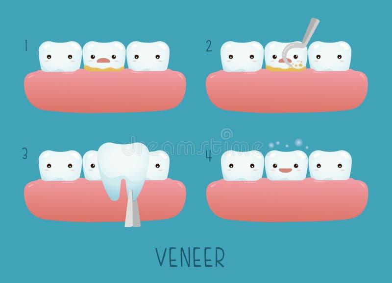 Dente dell'impiallacciatura di dentario illustrazione di stock