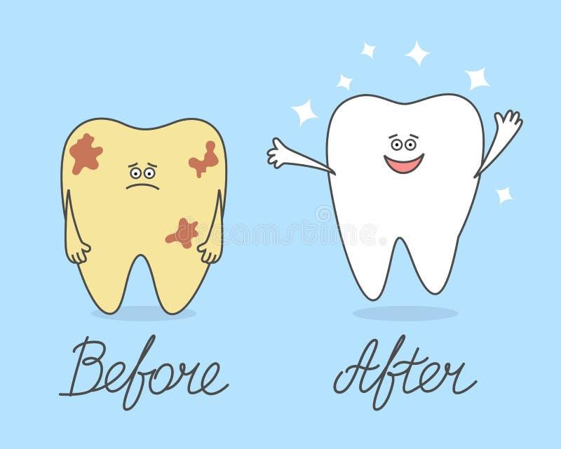Dente dos desenhos animados antes e depois da limpeza Comparação dos dentes doentes e saudáveis ilustração stock