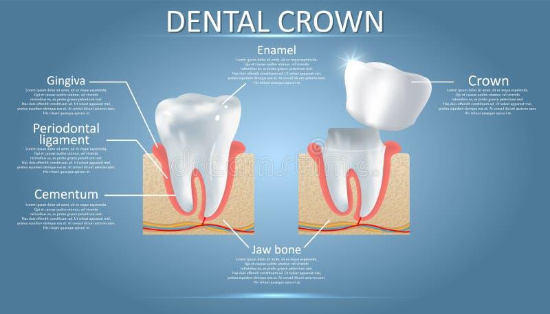 Dente humano e coroa dental, cartaz educacional do vetor ilustração stock