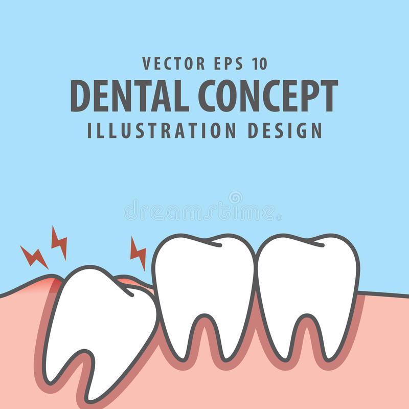 Dente incastrato dentro nell'ambito del vettore dell'illustrazione della gomma di infiammazione illustrazione vettoriale