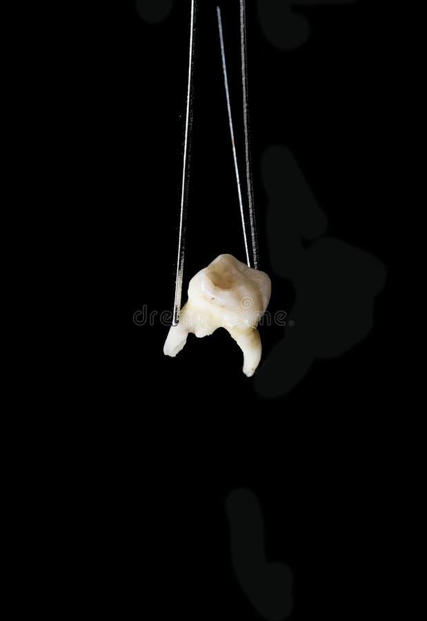 Dente mau removido no fórceps dental no fundo preto fotografia de stock royalty free