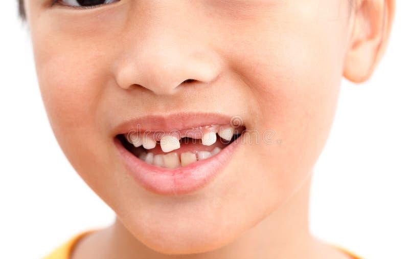 Dente tagliato bambino fotografie stock libere da diritti