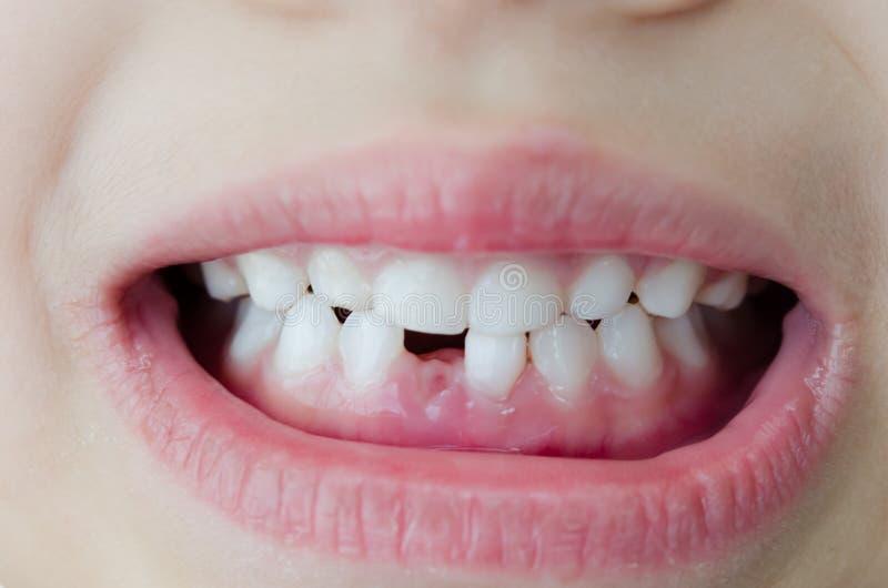 Dente tagliato bambino immagini stock libere da diritti