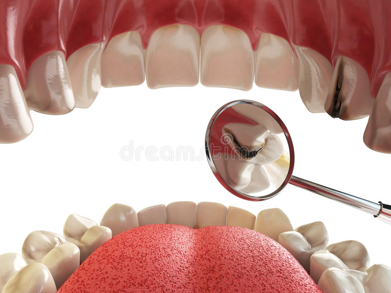 Dente umano con il foro e gli strumenti del cariesand Ricerca dentaria concentrata illustrazione di stock