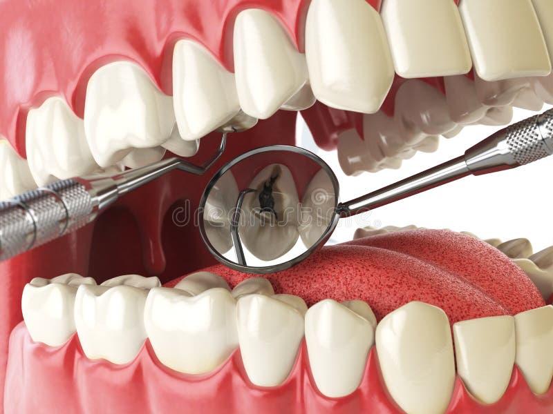 Dente umano con il foro e gli strumenti del cariesand Ricerca dentaria concentrata royalty illustrazione gratis