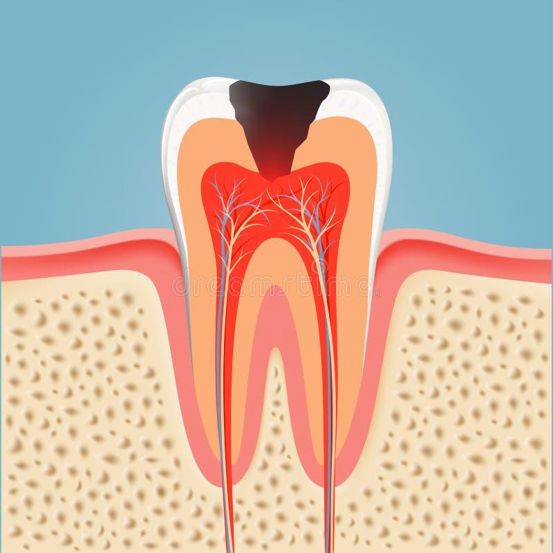 Dente umano con la carie azione illustrazione di stock