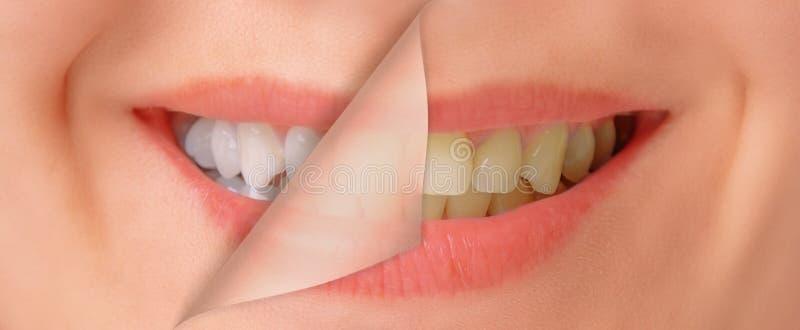 Dentes antes e depois de whitening foto de stock