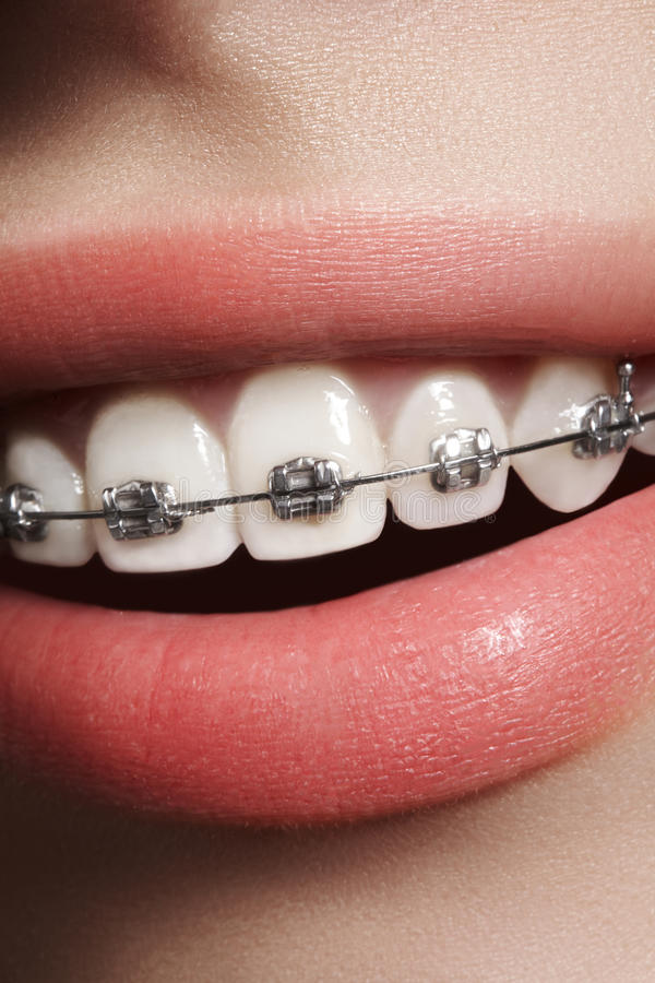 Dentes brancos bonitos com cintas Foto dos cuidados dentários Sorriso da mulher com acessórios ortodontic Tratamento da ortodonti fotos de stock royalty free