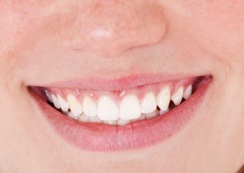 Dentes brancos saudáveis fotos de stock