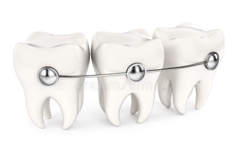 Dentes com cintas ilustração royalty free