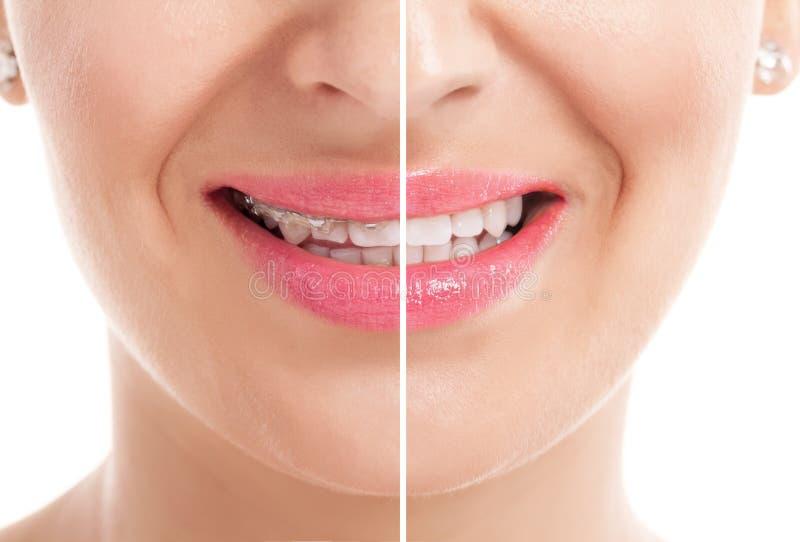 Dentes com cintas imagens de stock