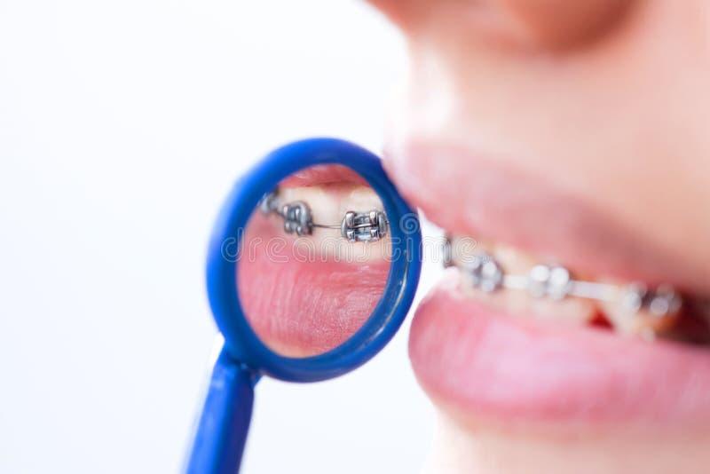 Dentes com cintas fotografia de stock