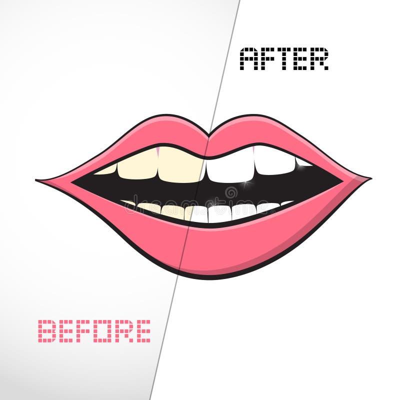Dentes da limpeza, antes e depois ilustração royalty free