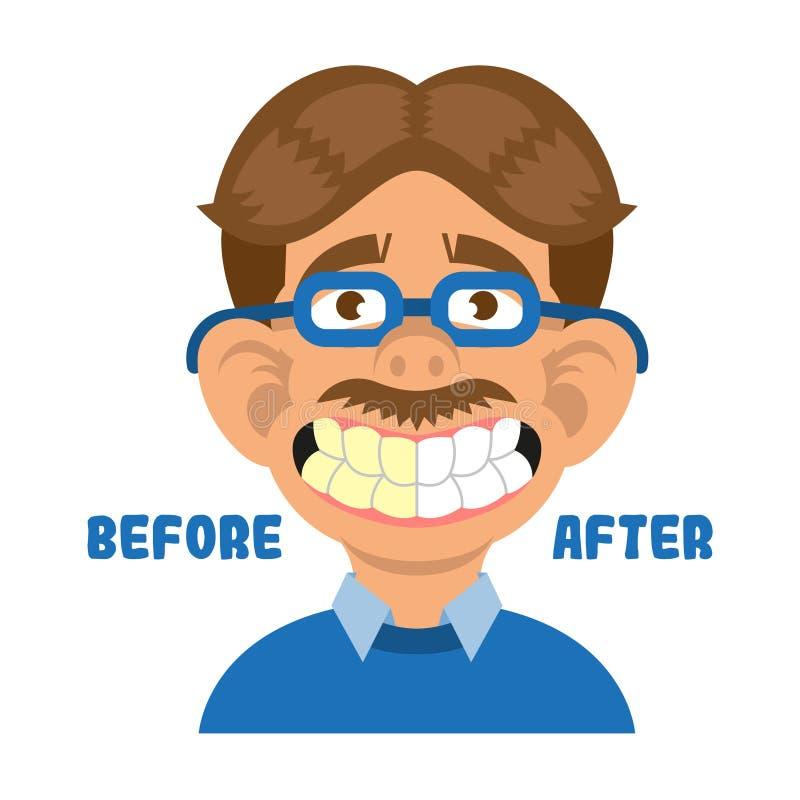 Dentes da mostra do homem antes e depois de limpo ilustração royalty free