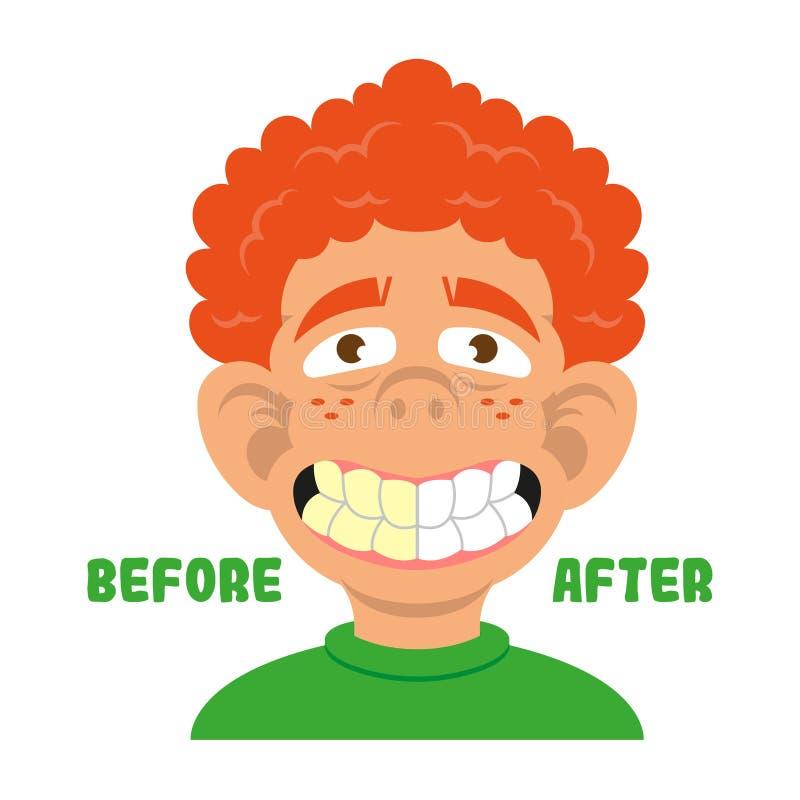 Dentes da mostra do menino antes e depois de limpo ilustração do vetor