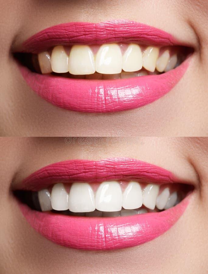 Dentes da mulher antes e depois do alvejante foto de stock