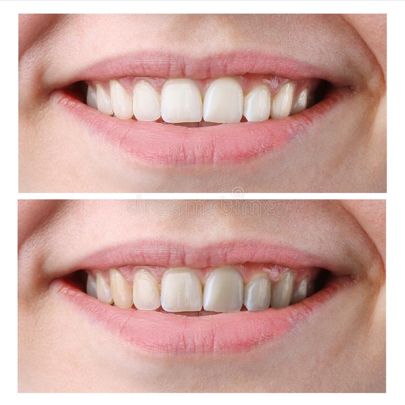 Dentes da mulher antes e depois do alvejante no fundo branco foto de stock