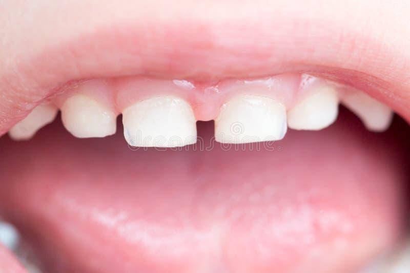 Dentes de bebê Macro foto de stock