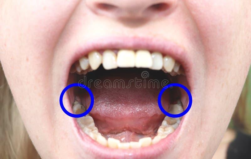 Dentes de sabedoria que corte Dentes de sabedoria impactados, eights Preparação para a cirurgia da remoção dos dentes de sabedori foto de stock
