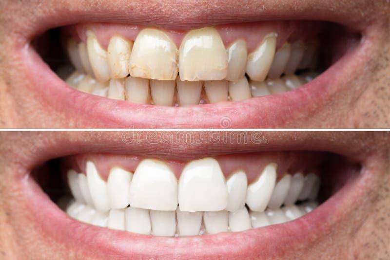Dentes do homem antes e depois do alvejante fotografia de stock