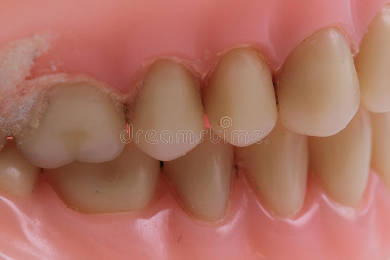dentes do plástico do detalhe fotografia de stock